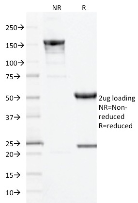 SDS-PAGE Analysis Purified CD10 Mouse Monoclonal Antibody (MME/1893).Confirmation of Integrity and Purity of Antibody.