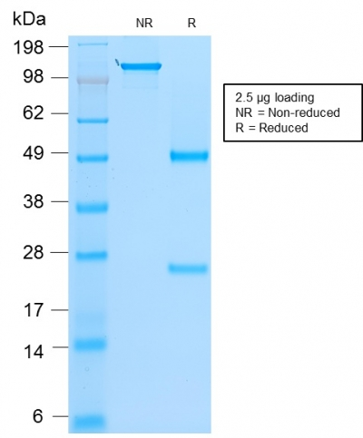 SDS-PAGE Analysis Purified MyoD1 Mouse Recombinant Monoclonal Antibody (rMYD712).Confirmation of Purity and Integrity of Antibody.