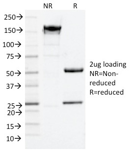 SDS-PAGE Analysis Purified NGFR Mouse Monoclonal Antibody (NGFR/1964).Confirmation of Purity and Integrity of Antibody.