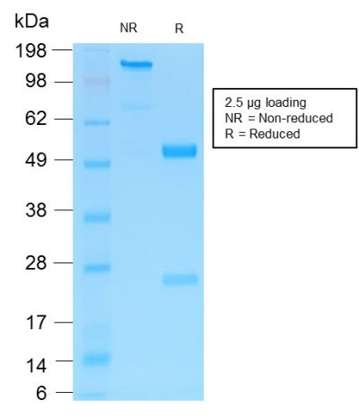 SDS-PAGE Analysis Purified NGFR Rabbit Recombinant Monoclonal Antibody (NGFR/1997R).Confirmation of Purity and Integrity of Antibody.