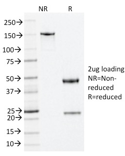 SDS-PAGE Analysis Purified Nucleophosmin Mouse Monoclonal Antibody (NA24).Confirmation of Integrity and Purity of Antibody.