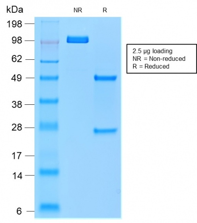SDS-PAGE Analysis of Purified TRAcP Mouse Recombinant Monoclonal Antibody (rACP5/1070).Confirmation of Purity and Integrity of Antibody.