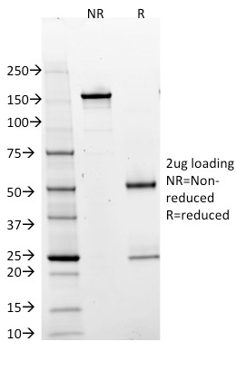 SDS-PAGE Analysis Purified BOB1 Mouse Monoclonal Antibody (BOB1/2425).Confirmation of Integrity and Purity of Antibody.