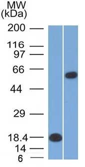 Western Blot Analysis (A) Recombinant Protein (B) Daudi Cell lysate Oct-2 Mouse Monoclonal Antibody (OCT2/2137).