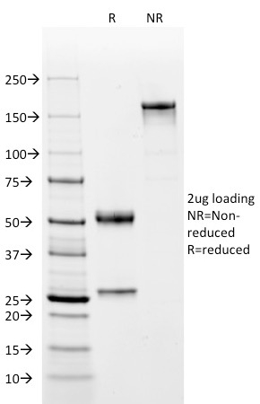SDS-PAGE Analysis Purified Oct-2 Mouse Monoclonal Antibody (OCT2/2137). Confirmation of Integrity and Purity of Antibody.