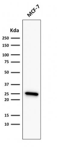 Western Blot Analysis of MCF-7 Cell lysate using Bcl-2 Mouse Recombinant Monoclonal Antibody (rBCL2/782).