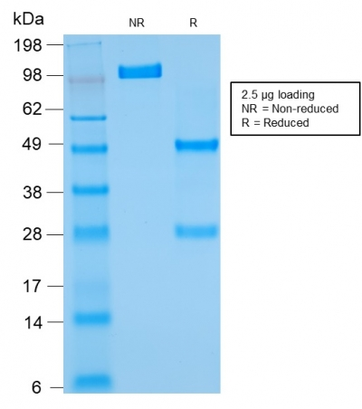 SDS-PAGE Analysis Purified Bcl-2 Mouse Recombinant Monoclonal Antibody (rBCL2/782).Confirmation of Purity and Integrity of Antibody.