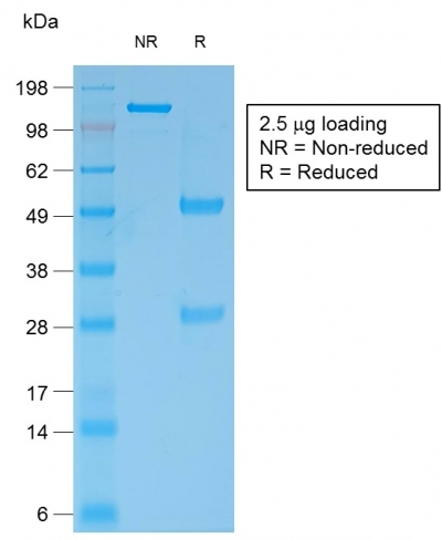 SDS-PAGE Analysis Purified Bcl-2 Mouse Recombinant Monoclonal Antibody (rBCL2/796).Confirmation of Purity and Integrity of Antibody.