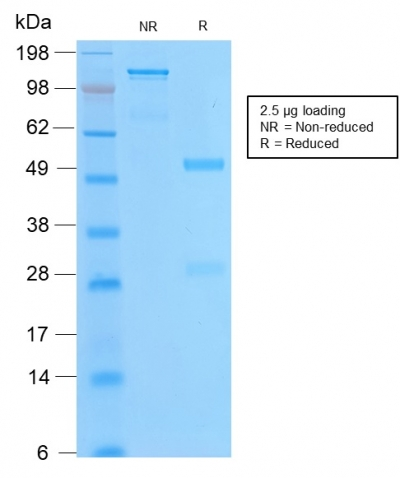 SDS-PAGE Analysis of Purified Bcl-2 Rabbit Recombinant Monoclonal Antibody (BCL2/2210R).Confirmation of Purity and Integrity of Antibody.