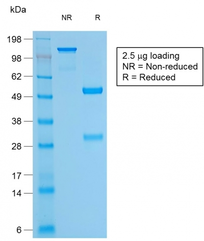 SDS-PAGE Analysis Purified Bcl-2 Rabbit Recombinant Monoclonal Antibody (BCL2/1878R).Confirmation of Purity and Integrity of Antibody.