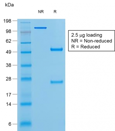 SDS-PAGE Analysis Purified BCL-6 Mouse Recombinant Monoclonal Antibody (rBCL6/1527).Confirmation of Purity and Integrity of Antibody.
