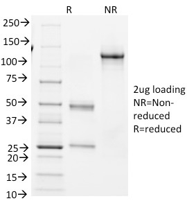 SDS-PAGE Analysis Purified BCL-6 Mouse Monoclonal Antibody (BCL6/1982).Confirmation of Integrity and Purity of Antibody.