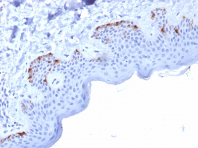 Formalin-fixed, paraffin-embedded human Skin stained with gp100 Mouse Monoclonal Antibody (PMEL/2037).