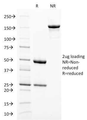 SDS-PAGE Analysis Purified gp100 Mouse Monoclonal Antibody (PMEL/2038).Confirmation of Integrity and Purity of Antibody.