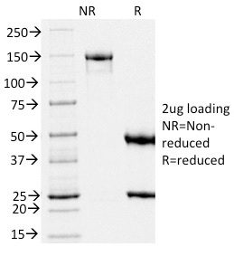 SDS-PAGE Analysis Purified gp100 Mouse Monoclonal Antibody (PMEL/2039).Confirmation of Integrity and Purity of Antibody.