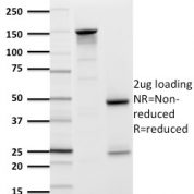 SDS-PAGE Analysis Purified GLUT-1 Mouse Monoclonal Antibody (GLUT1/2476).Confirmation of Purity and Integrity of Antibody.