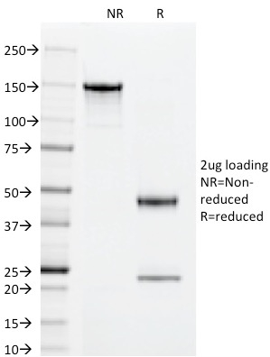 SDS-PAGE Analysis Purified Superoxide Dismutase 1 Mouse Monoclonal Antibody (SOD1/2089).Confirmation of Integrity and Purity of Antibody.