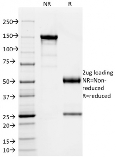 SDS-PAGE Analysis Purified SOX9 Mouse Monoclonal Antibody (PCRP-SOX9-1A2).Confirmation of Integrity and Purity of Antibody.