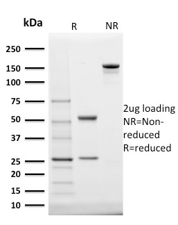 SDS-PAGE Analysis Purified StAR Mouse Monoclonal Antibody (STAR/2140).Confirmation of Integrity and Purity of Antibody.