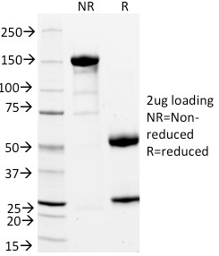SDS-PAGE Analysis Purified StAR Mouse Monoclonal Antibody (STAR/2154).Confirmation of Integrity and Purity of Antibody.