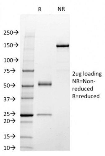 SDS-PAGE Analysis Purified STAT3 Mouse Monoclonal Antibody (STAT3/2409).Confirmation of Integrity and Purity of Antibody.