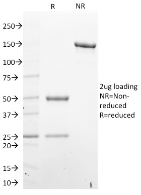 SDS-PAGE Analysis Purified STAT6 Mouse Monoclonal Antibody (STAT6/2410).Confirmation of Integrity and Purity of Antibody.