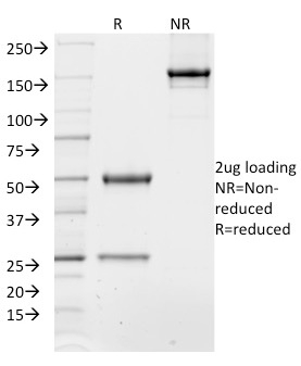 SDS-PAGE Analysis Purified TCF4 Mouse Monoclonal Antibody (TCF4/1705).Confirmation of Integrity and Purity of Antibody.