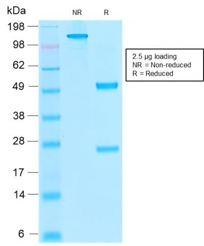 SDS-PAGE Analysis Purified Thrombomodulin Mouse Recombinant MAb (rTHBD/1591).Confirmation of Purity and Integrity of Antibody.
