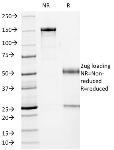 SDS-PAGE Analysis Purified p53 Mouse Monoclonal Antibody (PCRP-TP53-2A10).Confirmation of Integrity and Purity of Antibody.