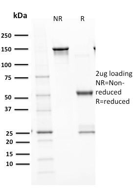 SDS –PAGE Analysis  Purified p53 Recombinant Rabbit Monoclonal Antibody (TP53/1799R).Confirmation of Purity and Integrity.