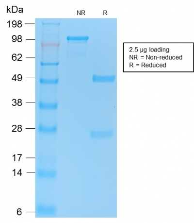 SDS-PAGE Analysis Purified p53 Recombinant Rabbit Monoclonal Antibody (TP53/2092R).Confirmation of Purity and Integrity.
