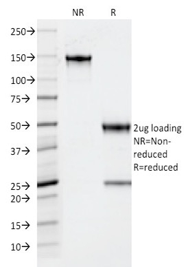 SDS-PAGE Analysis Purified TPO Mouse Monoclonal Antibody (TPO/1922).Confirmation of Integrity and Purity of the Antibody.