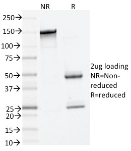 SDS-PAGE Analysis Purified Tryptase Mouse Monoclonal Antibody (TPSAB1/1961).Confirmation of Integrity and Purity of Antibody.