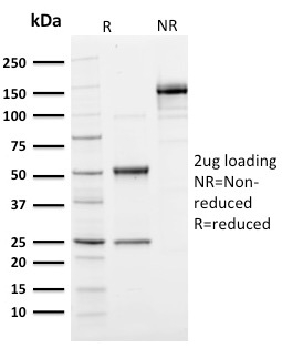 SDS –PAGE Analysis of Purified Ubiquitin Mouse Monoclonal Antibody (UBB/1748).Confirmation of purity and integrity.