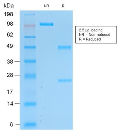 SDS-PAGE Analysis of Purified Pgp9.5 Mouse Recombinant Monoclonal Antibody (rUCHL1/775