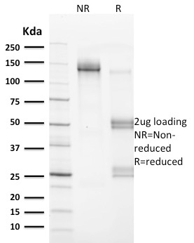 SDS-PAGE Analysis Purified VCL Mouse Monoclonal Antibody (VCL/2572).Confirmation of Integrity and Purity of Antibody.