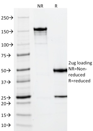 SDS-PAGE Analysis Purified Vimentin Mouse Monoclonal Antibody (VM452).Confirmation of Integrity and Purity of Antibody.