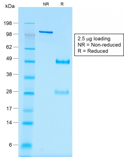 SDS-PAGE Analysis of Purified Wilm's Tumor Mouse Recombinant Monoclonal Antibody (rWT1/857).