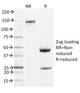 SDS-PAGE Analysis Purified ZAP70 Mouse Monoclonal Antibody (ZAP70/20535).Confirmation of Integrity and Purity of Antibody.