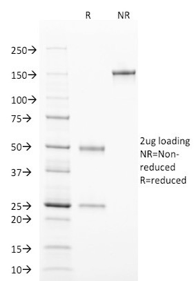 SDS-PAGE Analysis Purified TCL1 Mouse Monoclonal Antibody (TCL1/2078).Confirmation of Purity and Integrity of Antibody.