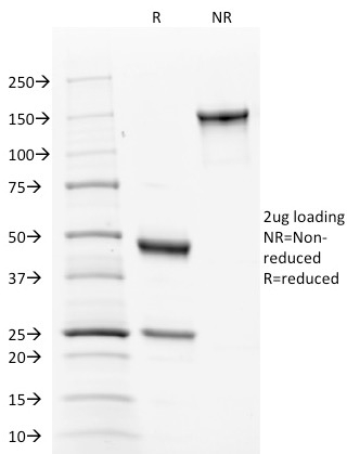 SDS-PAGE Analysis Purified Calnexin Mouse Monoclonal Antibody (CANX/1543). Confirmation of Integrity and Purity of Antibody.