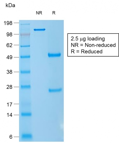 SDS-PAGE Analysis CD1a Mouse Recombinant Monoclonal Antibody (rC1A/711).Confirmation of Purity and Integrity of Antibody.