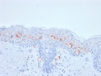 Formalin-fixed, paraffin-embedded human Skin Stained with CD1a Mouse Recombinant Monoclonal Antibody (rC1A/711).
