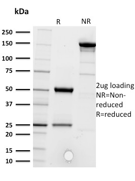 SDS-PAGE Analysis Purified CD5 Mouse Monoclonal Antibody (CD5/2416).Confirmation of Purity and Integrity of Antibody.