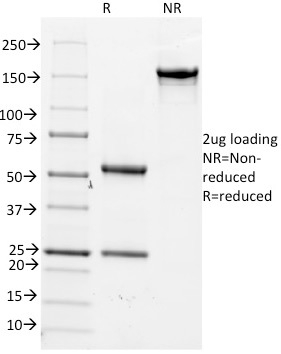 SDS-PAGE Analysis Purified CD14 Mouse Monoclonal Antibody (LPSR/2386).Confirmation of Integrity and Purity of Antibody.