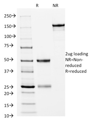 SDS-PAGE Analysis Purified CD14 Mouse Monoclonal Antibody (LPSR/2397).Confirmation of Integrity and Purity of Antibody.