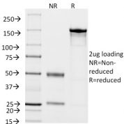 SDS-PAGE Analysis Purified CD14 Mouse Monoclonal Antibody (LPSR/2408).Confirmation of Integrity and Purity of Antibody.