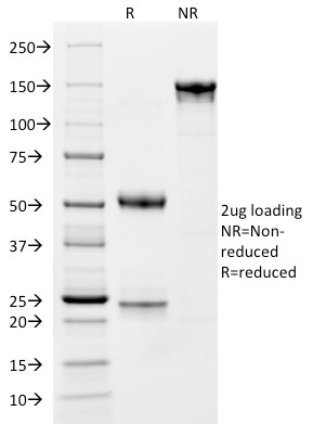 SDS-PAGE Analysis Purified CD163 Mouse Monoclonal Antibody (M130/1210).Confirmation of Integrity and Purity of Antibody.