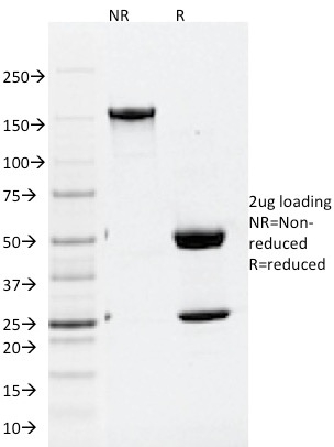 SDS-PAGE Analysis Purified ATG5 Mouse Monoclonal Antibody (ATG5/2101).Confirmation of Integrity and Purity of Antibody.
