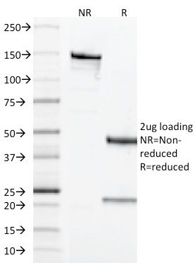 SDS-PAGE Analysis Purified CD68 Mouse Monoclonal Antibody (LAMP4/1830).Confirmation of Integrity and Purity of Antibody.